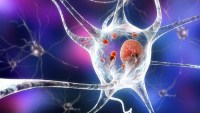 Translational Science Cancer Drug Might Cure Parkinson's Disease