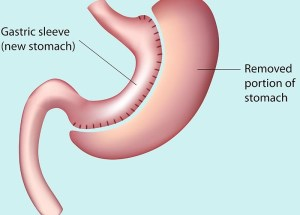 How does the gastric sleeve procedure work?
