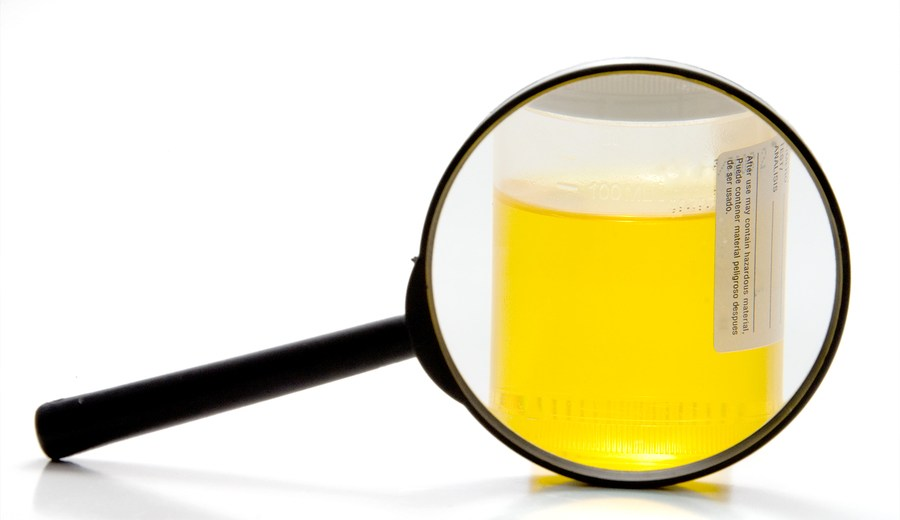 Essential Tips to Beat the Urine Drug Test