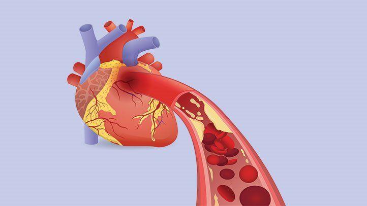 Biomechanical Model Helps Forecast Heart Attacks