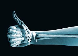 Prevent Your Bones From Ageing By Exercising Regularly