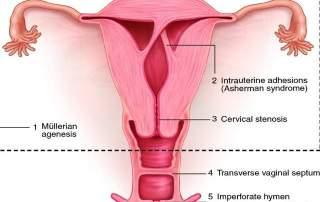 uterine synechiae