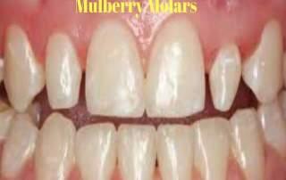 mulberry molars
