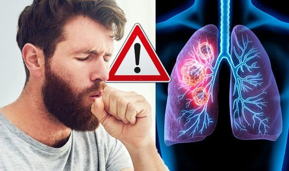 Lung cancer symptoms: The Warning sign on your face