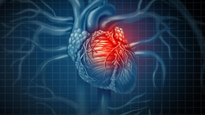 Heart attack symptoms: The 'surprising' Symptoms to Look out For