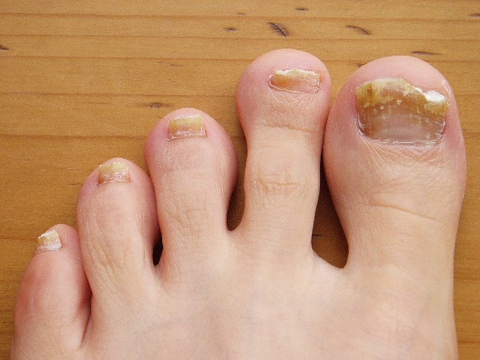 Toenail Fungus - Causes, Treatment and Prevention – Health Tips Ever ...