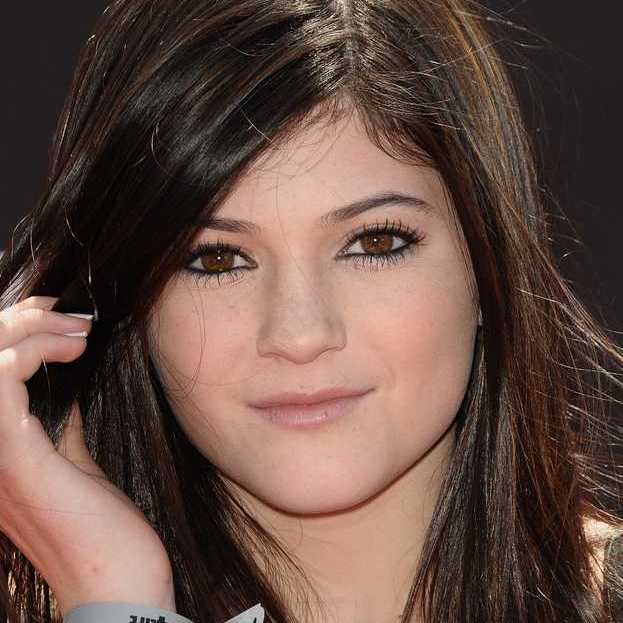 kylie-jenner-before-lip-injections-May-2010
