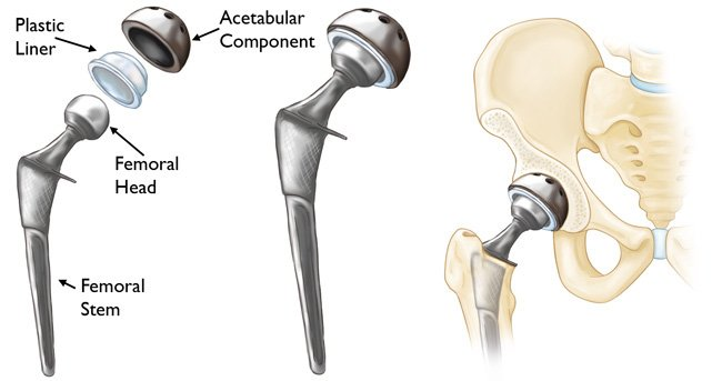 A photo showing Common artificial components used during hip replacement surgery