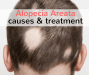 alopecia areata causes and treatment