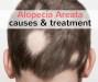 alopecia areata causes and treatment