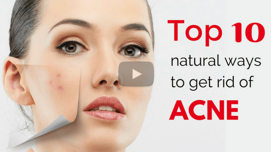 10 Most natural way to clear acne without side effects [video]