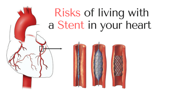 Living with a stent in your heart
