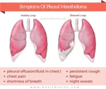 pleural-mesothelioma