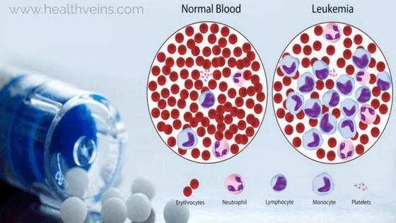 chronic lymphocytic leukemia diagnosis and treatment