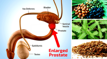Natural Remedies For Enlarged Prostate Gland | With Video