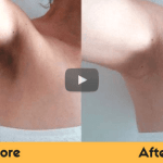 how to get rid of dark underarms naturally