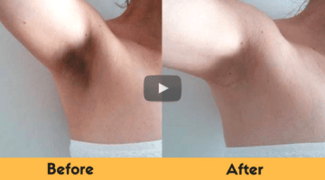 How To Get Rid Of Dark Underarms Naturally Fast | 5 Home Remedies
