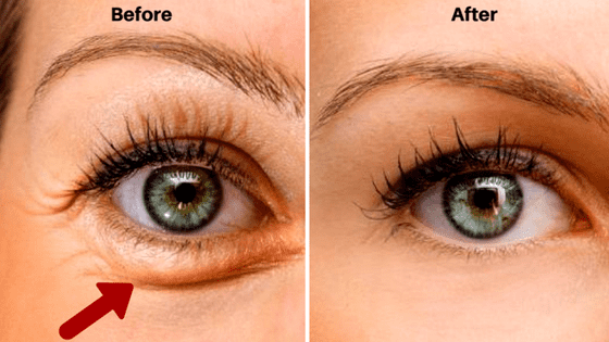How To Get Rid Of Veins Under Eyes Naturally