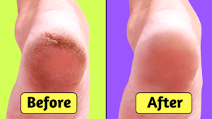 how to heal dry cracked feet naturally