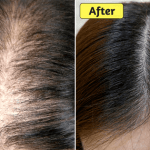 How To Stop Thinning Hair Naturally