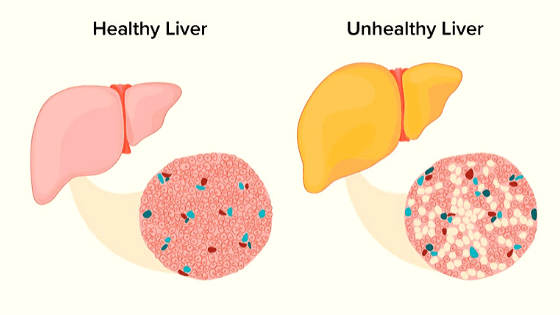 how to get rid of fatty liver disease naturally