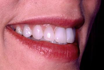 tetracycline staining after cosmetic dentistry