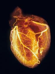 blood cholesterol