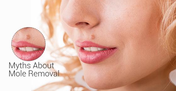 mole-removal