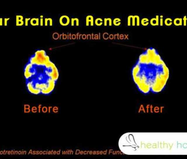 Doctor Prescribed Acne Medications Can Cause Blood And Brain Damage Cure It Naturally Like This