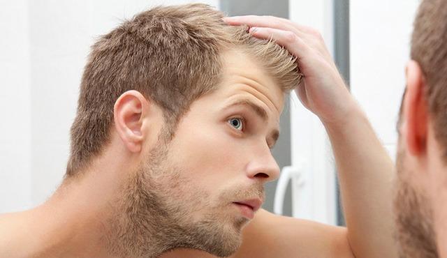 علاج تساقط الشعر عند الرجال من الأمام