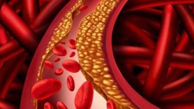 Photo of ما هي فوائد الكوليسترول الجيد وما هي عوامل الخطر لرفع الكوليسترول السيئ؟