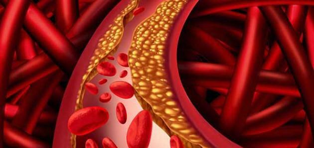 ما هي فوائد الكوليسترول الجيد وما هي عوامل الخطر لرفع الكوليسترول السيئ؟