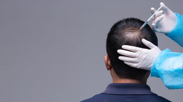 العمليات الجراحية لترميم الشعر