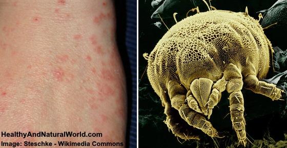 Mite Bites Warning Signs And Natural Treatments