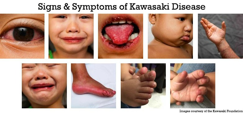 Kawasaki Disease in Infants & Young Children - HealthyChildren.org