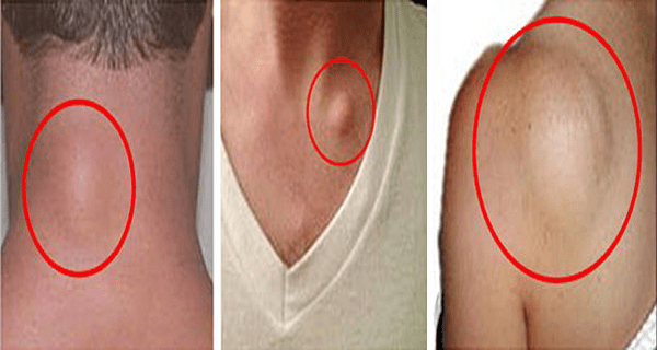 how-to-get-rid-of-skin-lumps-lipomas-naturally