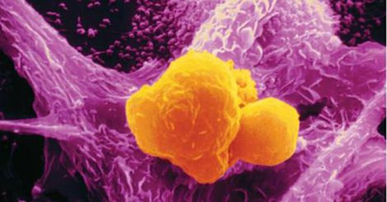 how-turmeric-kills-cancer-cells-video