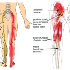 Lower Leg Nerve Diagram 2007 Pt Cruiser Fuse Causes Of Sciatica Pain And 3 Exercises To Relieve - Healthy Food House