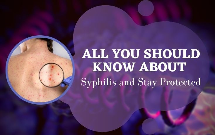 All about Syphilis and How to Stay Protected From It