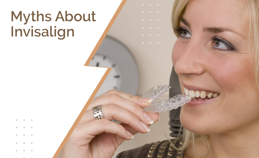 Myths About Invisalign