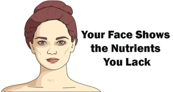 Five Signs of Nutrient Deficiencies That Are Written All Over Your Face