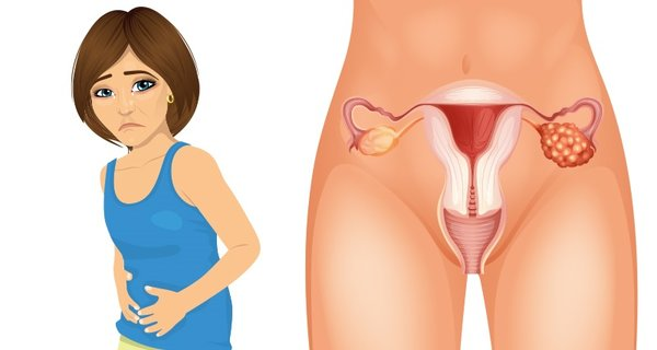 -Four early symptoms of ovarian cancer that every woman needs to know