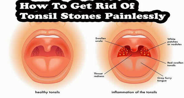 -How to Get Rid of Tonsil Stones Fast and Easily!