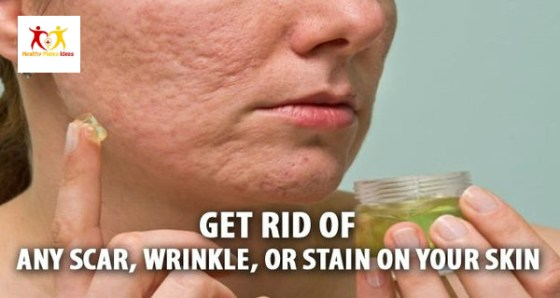 Rub This on Any Scar, Wrinkle, or Stain on Your Skin and See Them Disappear in Minutes!