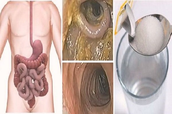 48-Hour Weekend Liver, Colon And Kidney Detox That Will Remove All Toxins And Fat From Your Body…