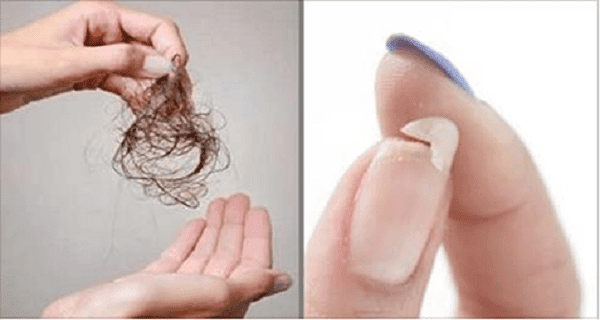 You Need To Eat This If You Have Hair Loss, Brittle Nails Or You're Not Sleeping Well!