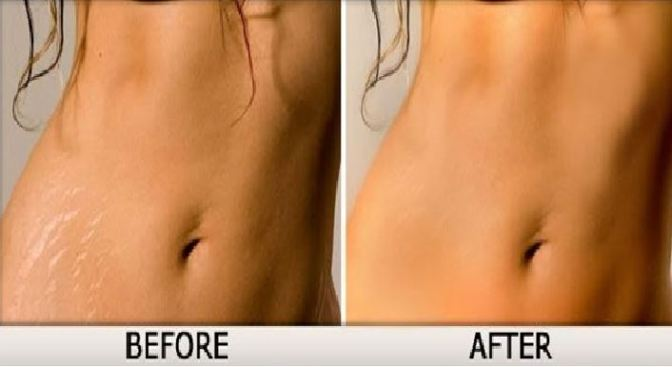 Get Rid Of Stretch Marks Naturally!