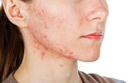 6 INTERNAL PROBLEMS THE PIMPLES ON YOUR FACE MAY BE REVEALING!