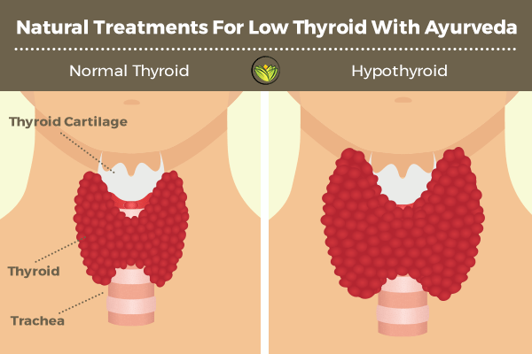 Treatment for the thyroid gland by using only 1 product