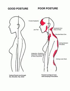good & poor posture